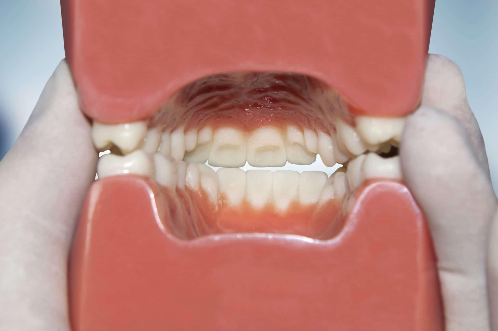modele-de-dents-mauvaise-occlusion